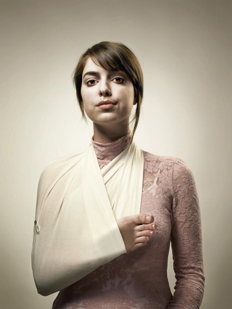 Сломанные руки девушки красивые фото